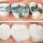 Natural Tooth-Colored Fillings in Victoria TX