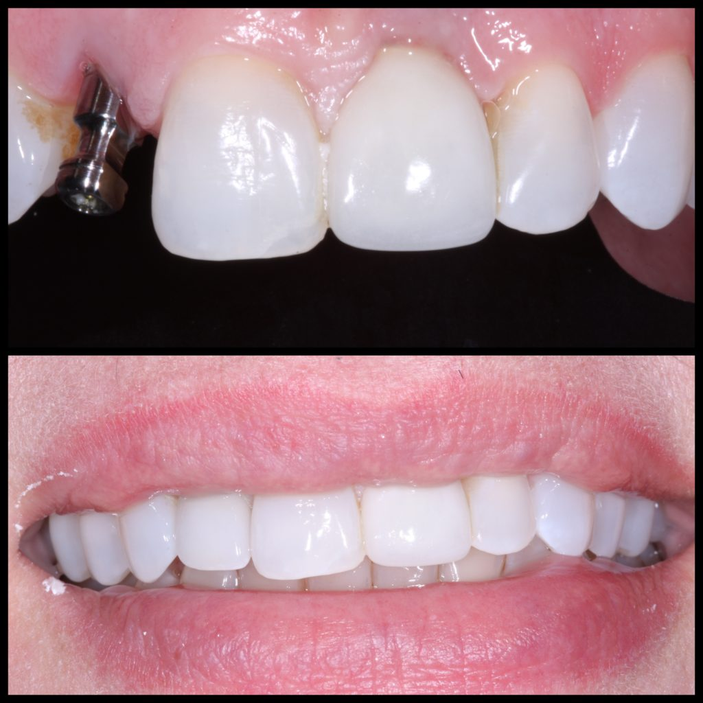 Dental Implant Victoria Tx