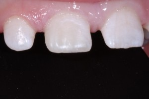 Composite Tooth Bonding Services in Victoria TX