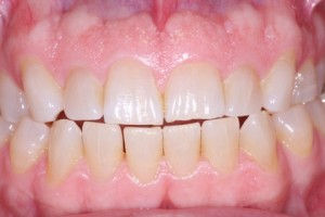 Teeth Bleaching & Dentists in Victoria TX