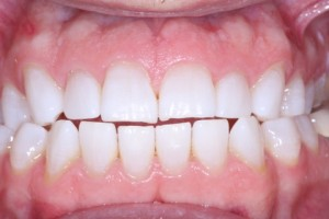 Teeth Whitening & Cosmetic Dentistry in Victoria TX
