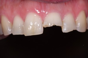 Cosmetic Dentistry in Victoria TX