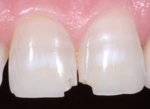 Broken Tooth Colored Filling Services in Victoria TX