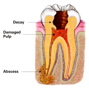 Root Canal Dentistry in Victoria TX