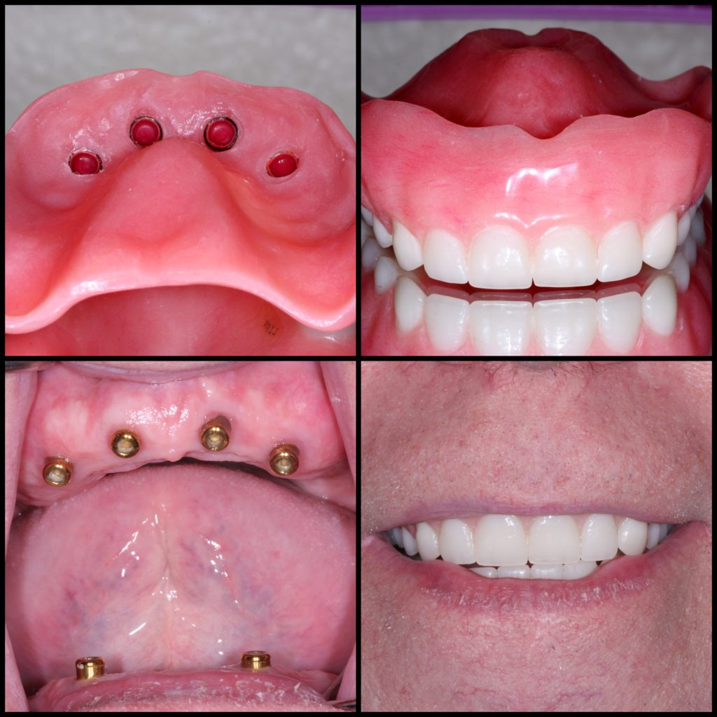 Implant Dentures Victoria Tx