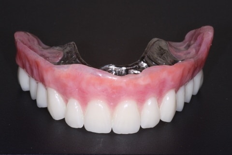 Implant Denture Victoria, TX