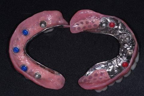 Implant Dentures Victoria, TX