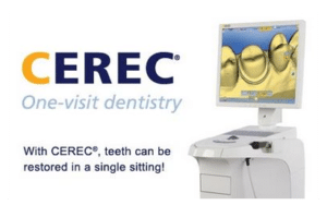 Cerec one visit crowns victoria tx