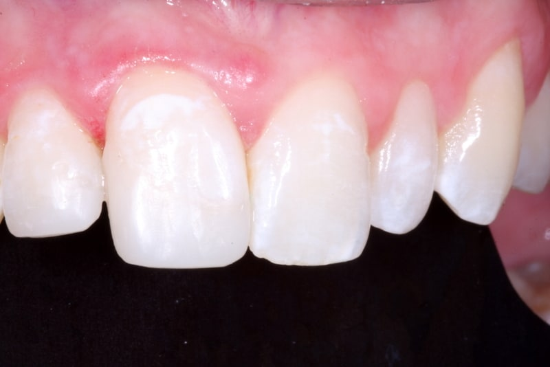Composite Tooth Repair & Dentistry in Victoria TX