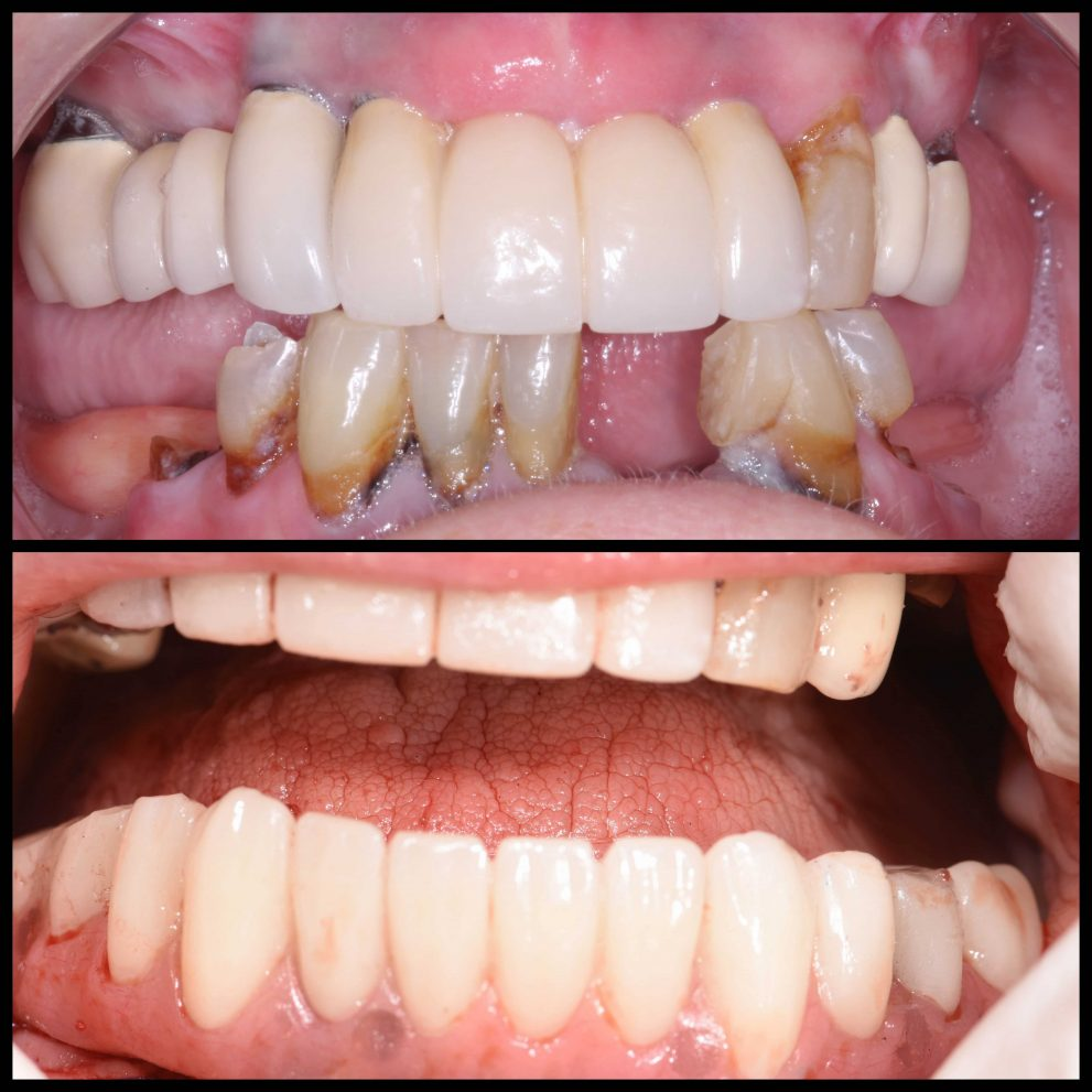 All-On-4 Dental Implant Dentures