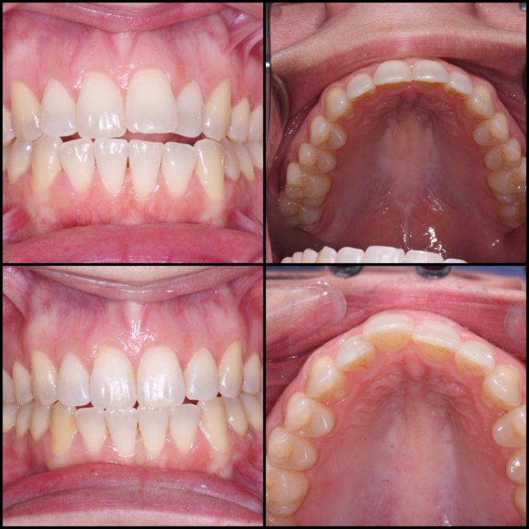 nvisalign completed in a few months. Closed the bite and straightened the teeth.