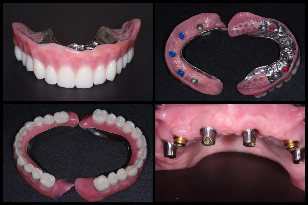 Palate Free Implant Denture