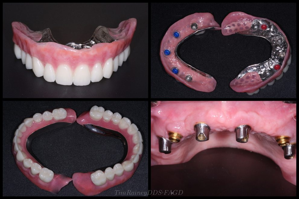 Implant Denture Palate Free