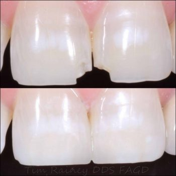 Composite Dental Bonding